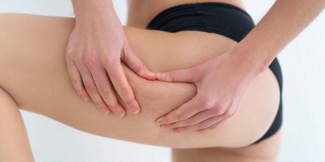 il trattamento per combattere la cellulite