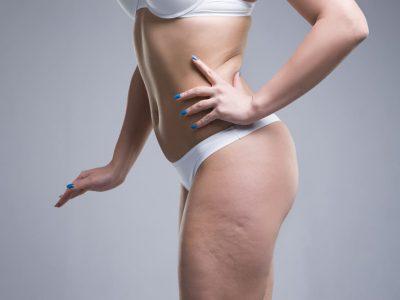 come combattere la cellulite
