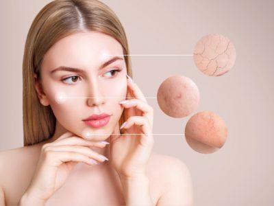 Donna con problemi di teleangectasie del viso pensa al trattamento estetico che potrebbe fare per risolvere il problema
